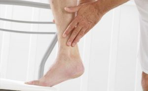 Are leg ulcer difficult to heal?