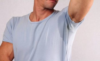 Cure excessive sweating with homeopathic medicines