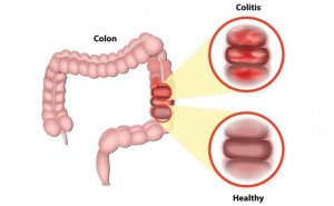 Homemade Remedies for Irritable Bowel Syndrome (IBS)