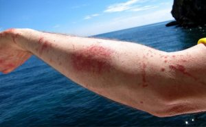 Homemade Remedies for Jellyfish Sting
