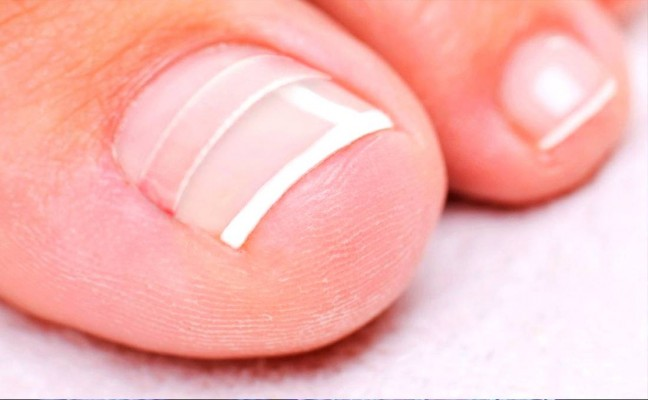 Homemade Remedies to Cure Ingrown Nail Naturally