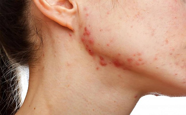 How to Cure Acne Scars at Home Naturally?