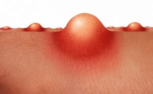 How to Cure Boils at Home Naturally?