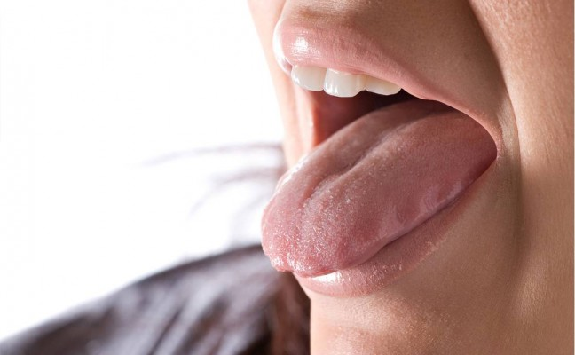 How to Cure Burning Tongue at Home Naturally?