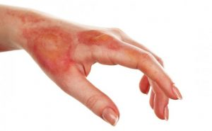 How to Cure Burns at Home Naturally?