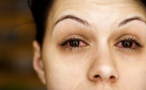 How to Cure Conjunctivitis at Home Naturally?