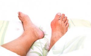 How to Cure Gout at Home Naturally?