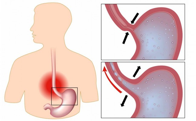 How to Cure Indigestion at Home Naturally?
