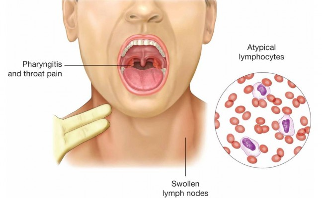 How to Cure Herpes at Home Naturally? | Ayurvedic Homemade