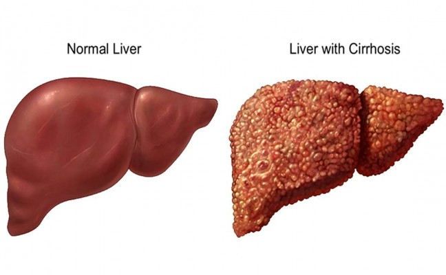 How to Cure Liver Disease at Home Naturally?
