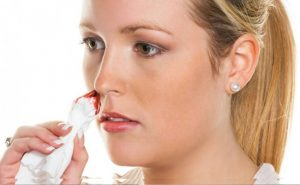 How to Cure Nose Bleeding at Home Naturally?