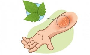 How to Cure Poison IVY Naturally?