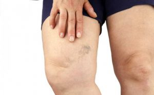 How to Cure Varicose Veins at Home Naturally?