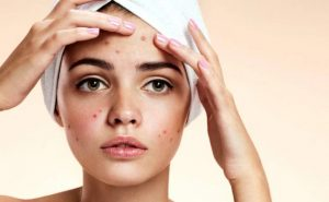 How to get rid of Acne at Home Naturally?