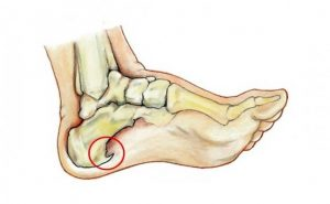 How to get rid of Bone Spurs at Home Naturally?