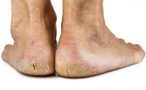 How to get rid of Cracked Heels at Home Naturally?