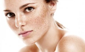 How to get rid of Freckles at Home Naturally?