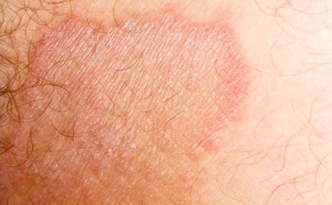 How to get rid of Jock Itch at Home Naturally?