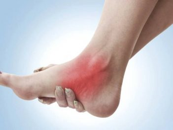 How to Get Rid of Sprain at Home Naturally?