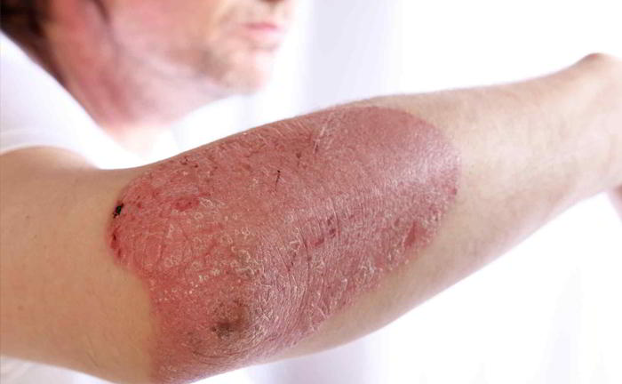 Is dermatitis contagious?