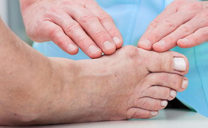 Is the operation minor for bunions?
