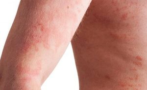 What should be done to get some relief from psoriasis?